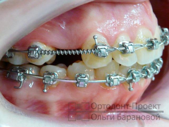 259Ставят ли брекеты на нарощенные зубы