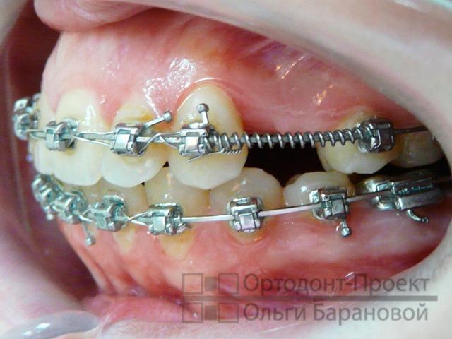 Кому удаляли один зуб для установки брекетов 78