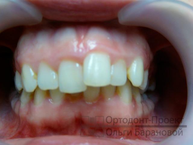можно ли исправить очень кривые зубы того, умышленное