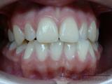 Ортодонт исправление прикуса челюсти