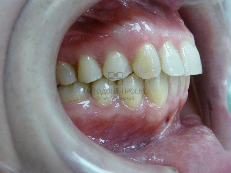 Подготовка к протезированию зубов цена
