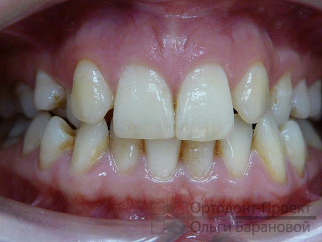 Ортодонтическое лечение при адентии и неправильном прикусе