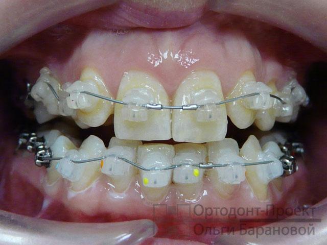 Брекеты отсутствие зубов лечение